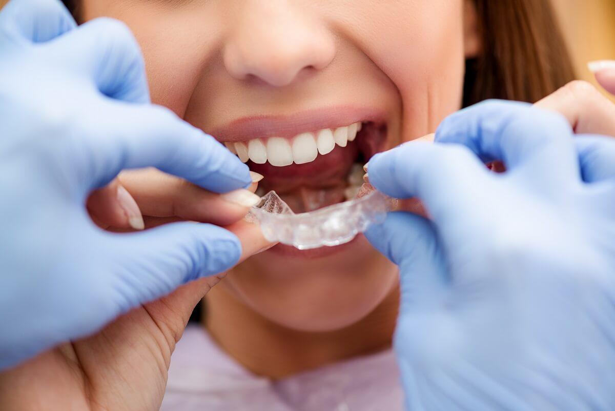 Ortodontia em Campo Grande MS